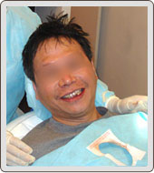 3D雷射微創植牙